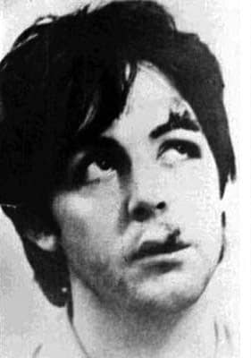 Paul McCartney after his moped accident, December 1965